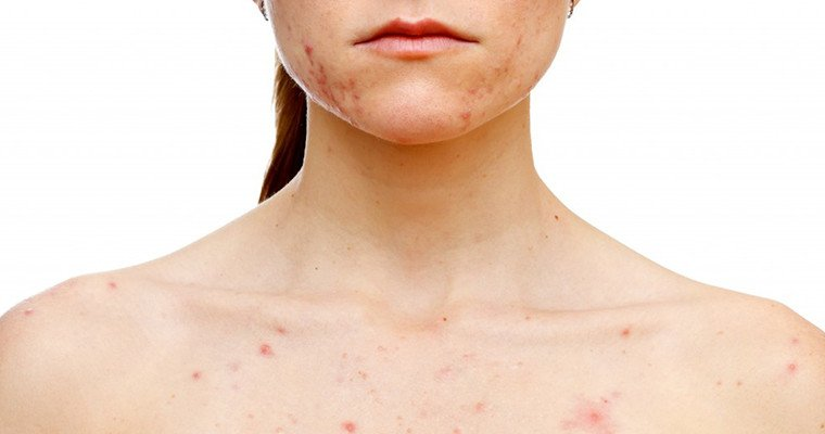 How To Get Rid Of Hormonal Acne After The Pill
